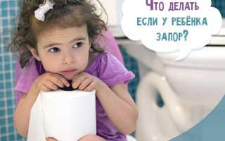 Чем кормить ребенка при запорах: что делать, как лечить