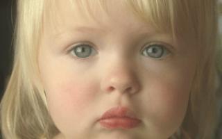 Аллергия сезонная у детей: как распознать, чем лечить