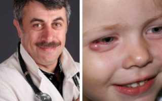 Чем лечить ячмень на верхнем веке у ребенка