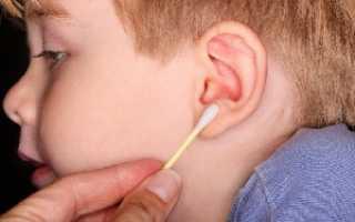 Как вытащить пробку из уха в домашних условиях у ребенка