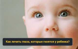 Температура и глаза гноятся у ребенка: что делать, как лечить