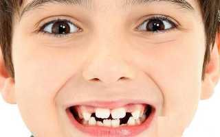 Когда режутся коренные зубы у детей симптомы