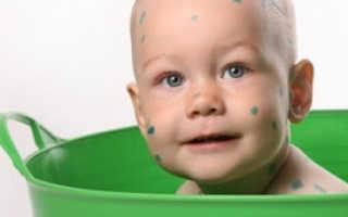Ветрянка у детей когда можно мыться: что делать, как лечить