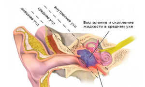 Какое обезболивающее можно дать ребенку при боли в ухе: как распознать, чем лечить