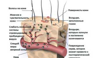 Антибиотик при ветрянке у детей: инструкции по применению