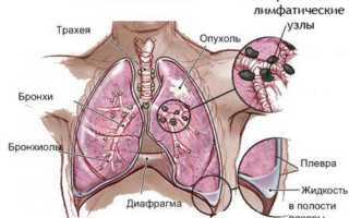 Ингаляции содой при онкологии легких: инструкция по применению
