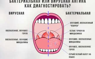 Вирусная ангина симптомы у детей: как распознать, чем лечить