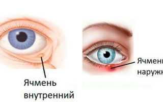 Ячмень на глазу у ребенка как лечить в домашних условиях