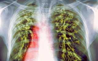 Латентная туберкулезная инфекция у детей: что делать, как лечить