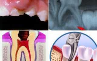 Периодонтит у ребенка молочные зубы лечение