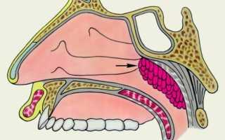 Операция на аденоиды у детей как проходит