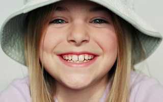 Молочные зубы первые