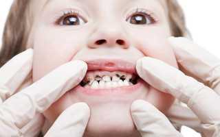У ребенка черные зубы молочные что делать