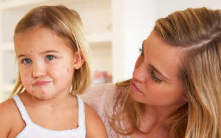 Сыпь при ангине у ребенка на теле: что делать, как лечить