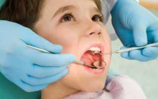 Болит у ребенка десна: как распознать, чем лечить
