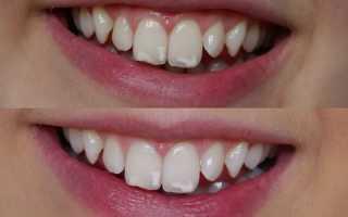 Флюороз зубов у детей