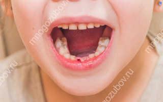 Ребенок выбил зуб молочный что делать