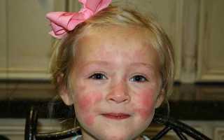 Как берут пробы на аллергию у детей