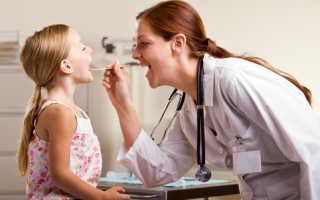 Как быстро вылечить ангину в домашних условиях у ребенка