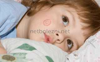 Мазь от лишая розового у детей: инструкция по применению