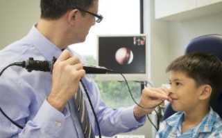 Эндоскопия носа ребенку что это такое