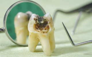 Молочные зубы у ребенка гниют что делать