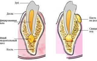 Свищ на десне молочного зуба у ребенка лечение