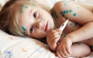 Лекарство от ветрянки вместо зеленки для детей